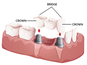 dental-bridge-crowns